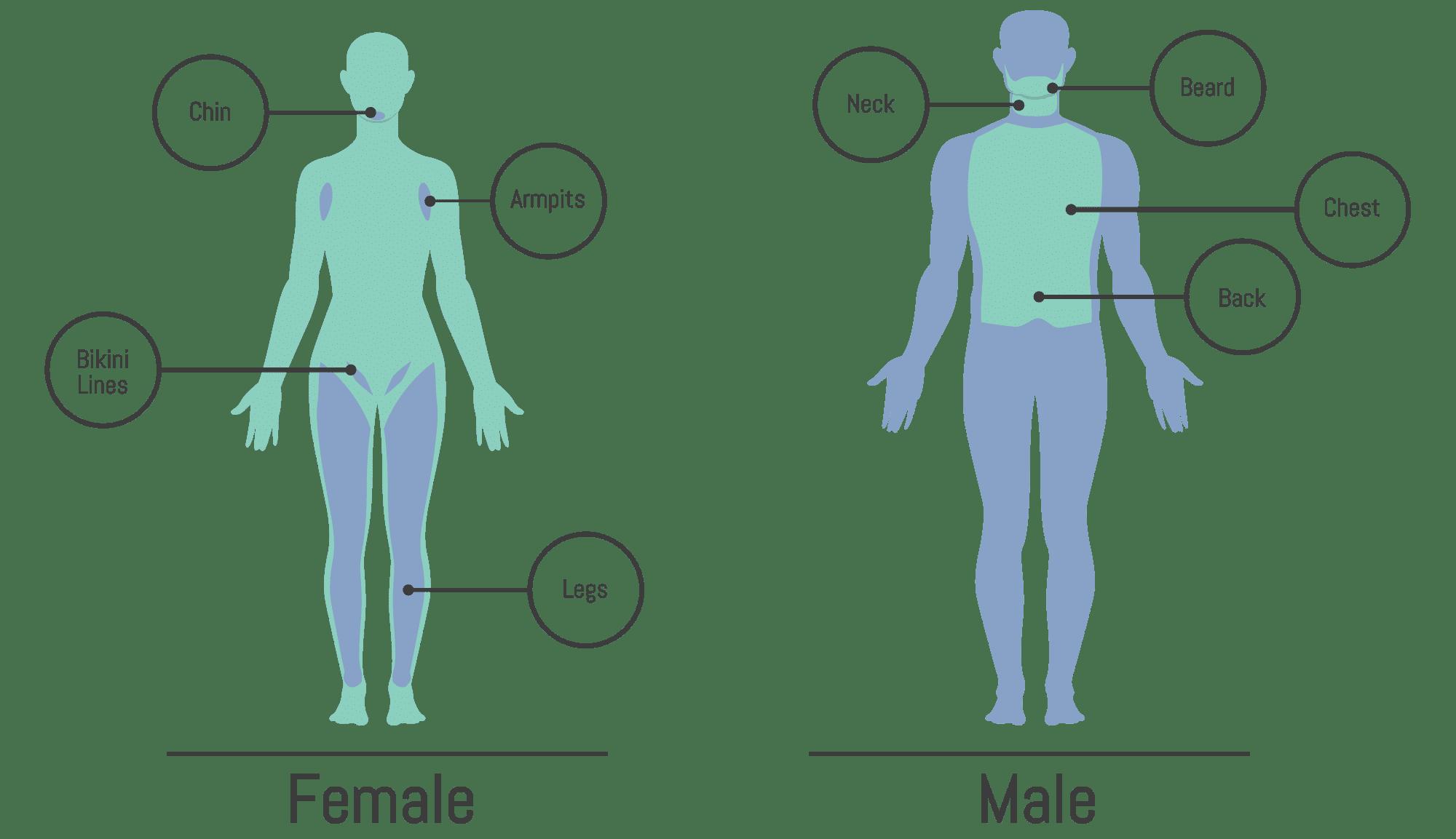 hight resolution of laser hair removal montrose dermatology and cosmetics dermatology body chart dermatology body diagram