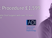 Are Dental Implants Your Best Option?