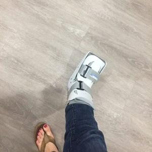 Foot in walking cast