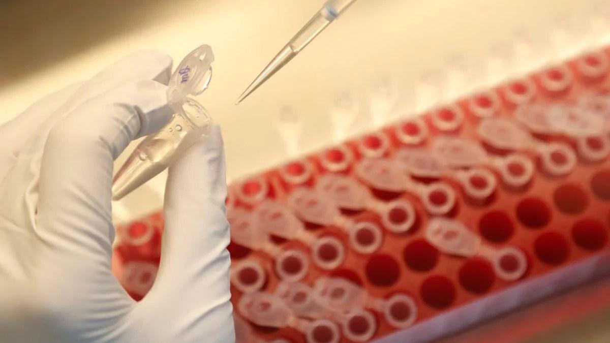 Una nueva vacuna podría contener el VIH sin la necesidad de recurrir al tratamiento antirretroviral