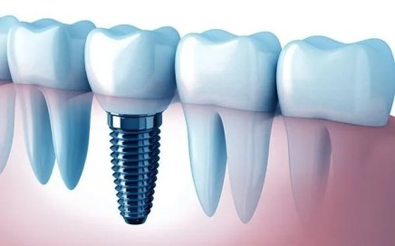 Dental implants, advanced dentistry costa rica