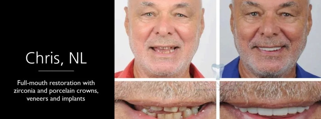 galleria galeria odontologica dentistry