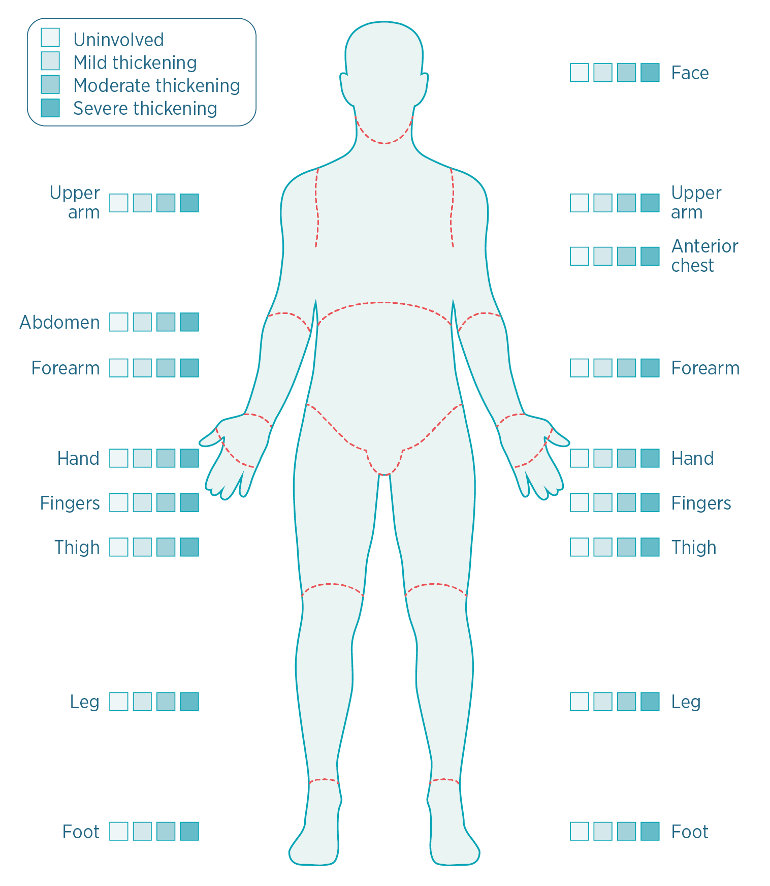 hight resolution of a diagram of human measuring severity of scleroderma skin symptoms