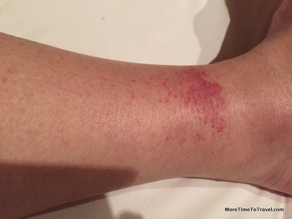 Golfer's Vasculitis in Florence (closeup of right leg)