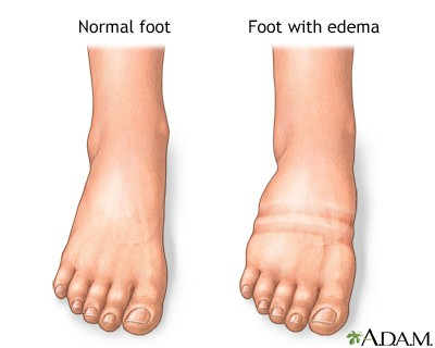 Foot Swelling (Photo credit: A.D.A.M. Medline Plus)