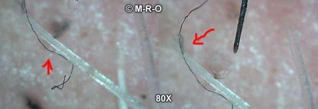 Morgellons Symptome Durch Filamentse Agrobakterien
