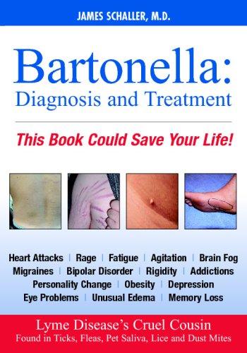 Bartonella: Diagnosis and Treatment (Dhivehi Edition)