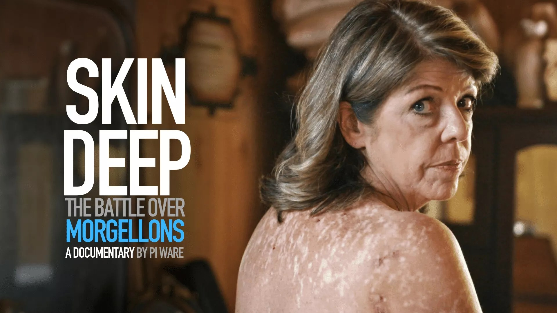 """The Charles E. Holman Morgellons Disease Foundation Announces World Premier of the Movie """"Skin Deep: The Battle Over Morgellons."""""""