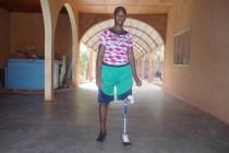 Patient avec prothèse