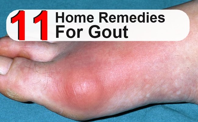 foods high in uric acid content list natural treatment for gout pain in foot causes of increased uric acid in cml