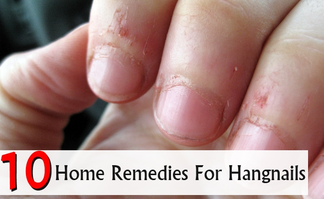 10 Home Remedies For Hangnails | Morpheme Remedies | India