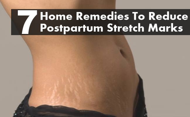 Home Remedies To Reduce Postpartum Stretch Marks