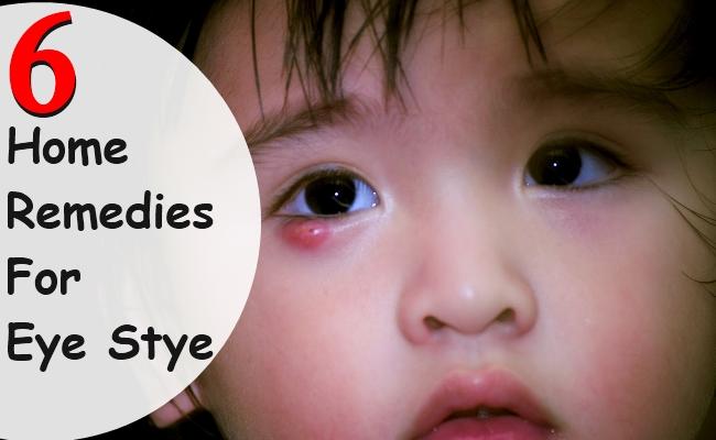 6 Home Remedies For Eye Stye Morpheme Remedies India