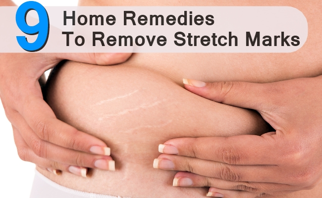 Home Remedies To Remove Stretch Marks