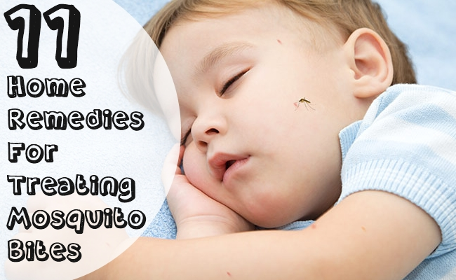 Home Remedies For Treating Mosquito Bites