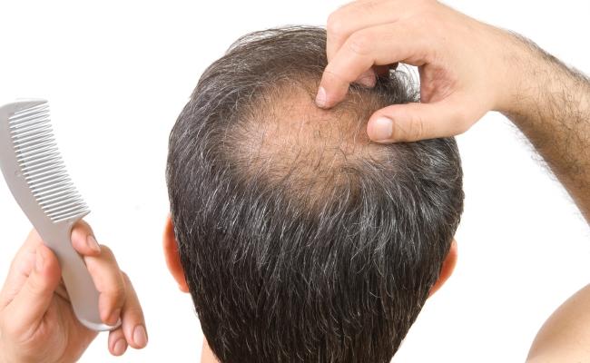 Cures Alopecia