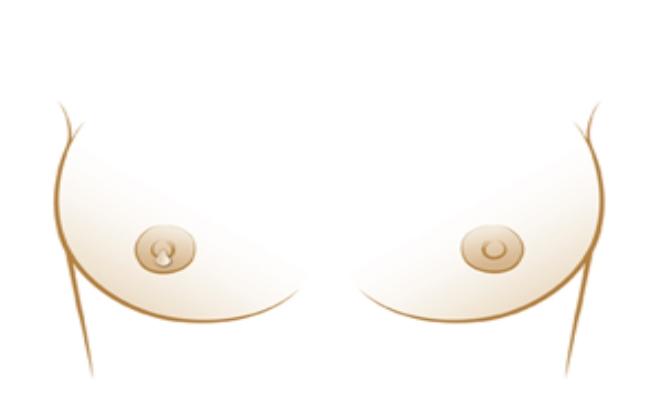 Discharge of nipples