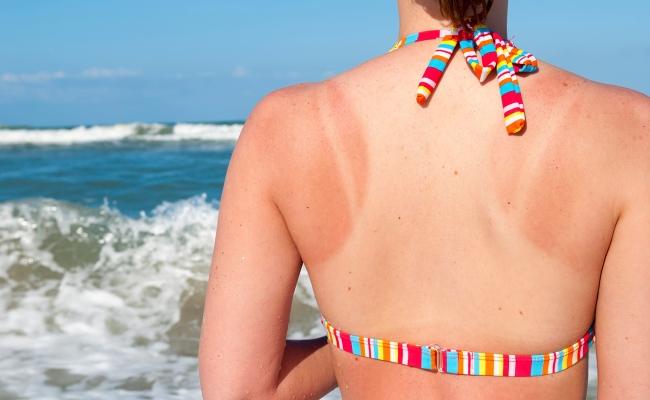 Reduces Sunburn