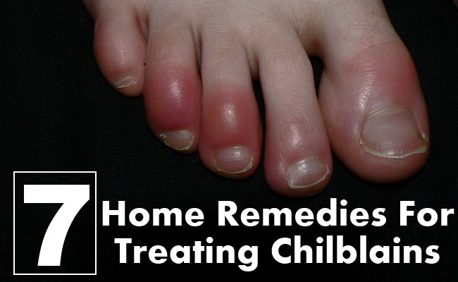 Home Remedies For Treating Chilblains
