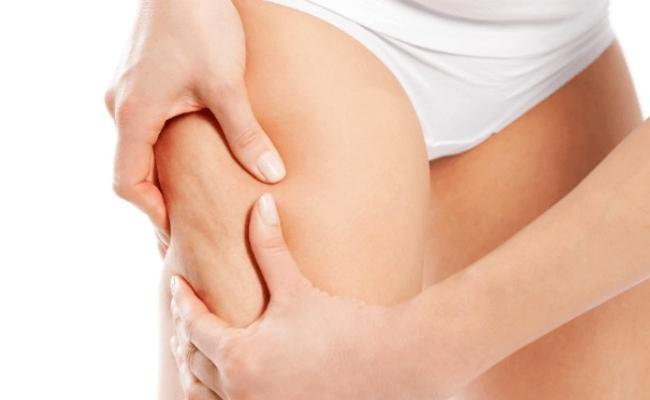 Reduces Cellulite