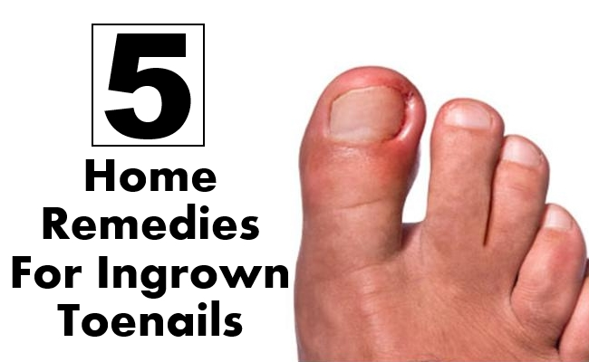 5 Best Home Remedies For Ingrown Toenails | Morpheme Remedies | India