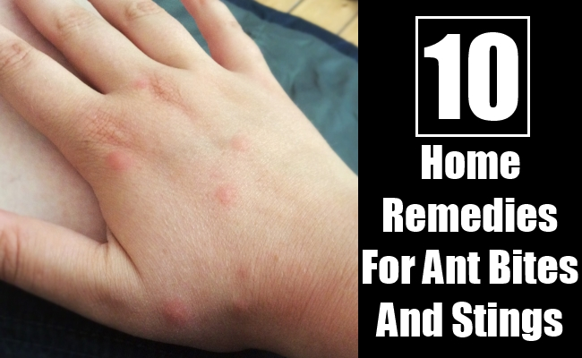 Home Remedies For Ant Bites And Stings