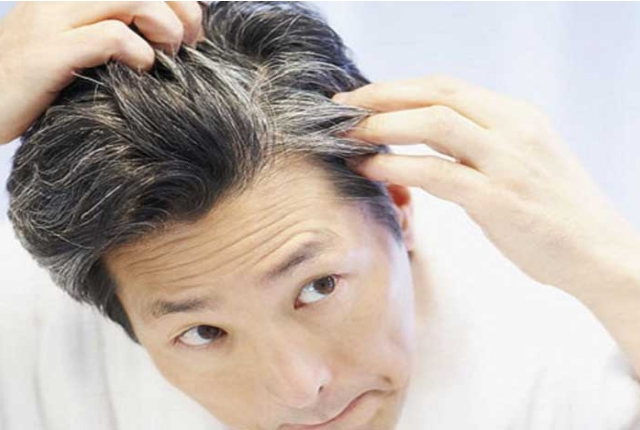 Home Remedies To Treat White Hair
