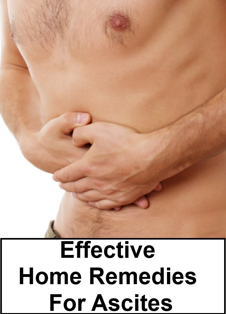 Effective Home Remedies For Ascites