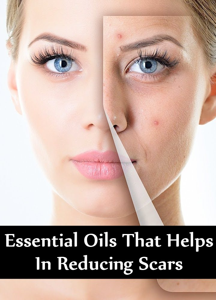 8 Amazing Essential Oils That Helps In Reducing Scars