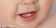 لماذا تتأخر ظهور الاسنان للأطفال