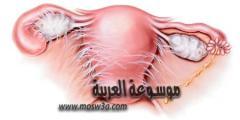 التصاقات الرحم واعراضها وعلاجها