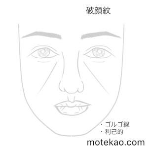 破顔紋(ゴルゴ線)