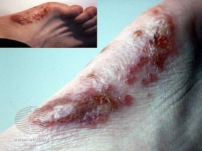 Severe dyshidrotic eczema / pompholyx in foot after flare up