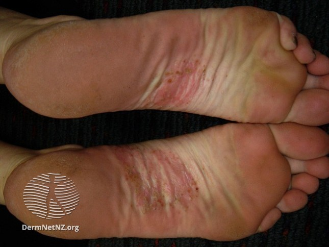 Dyshidrotic eczema / pompholyx in feet