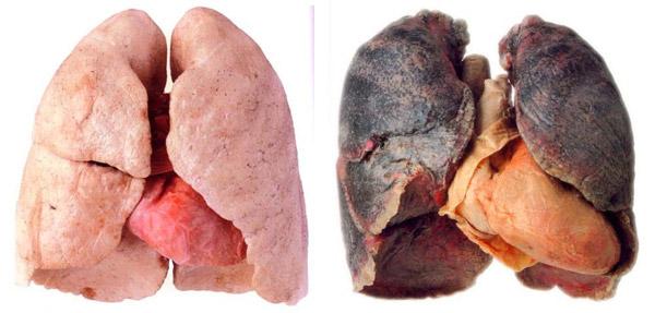 pulmones-sanos-y-de-fumador