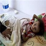 nepal-children-are-critical-malnutrition