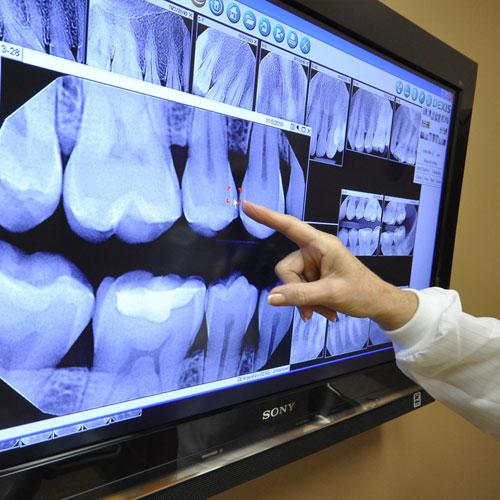 mount pleasant dental equipment