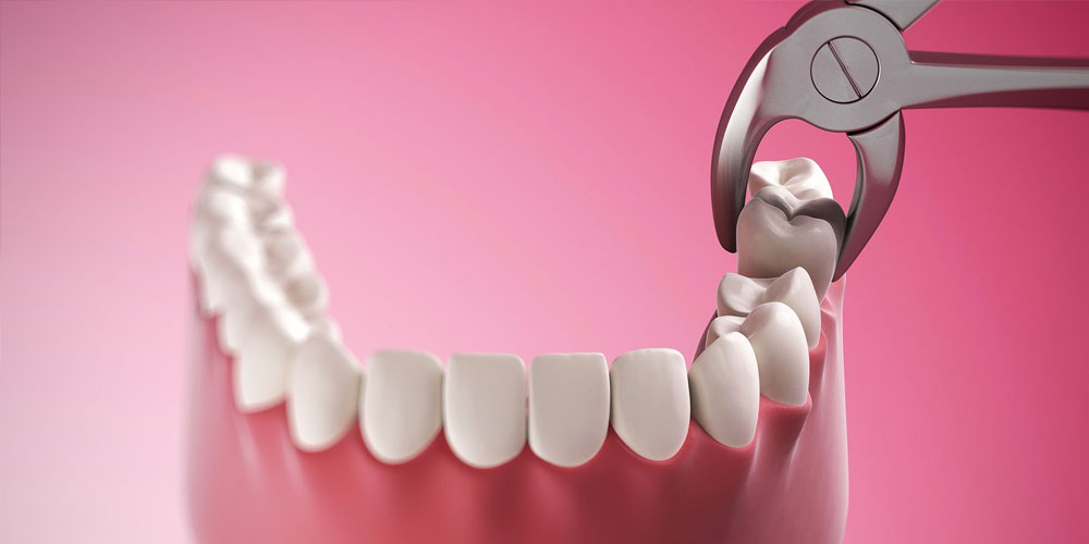 oral surgery vancouver