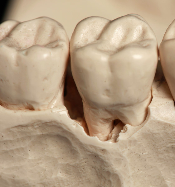 Model Showing Bone Loss