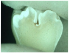 Cracked Tooth Enamel