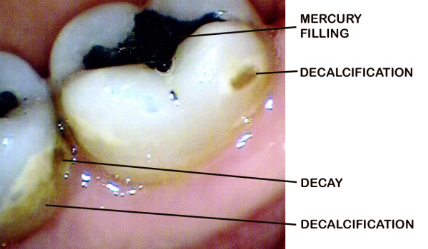 A Tooth That Has Lost Its Battle with Decay