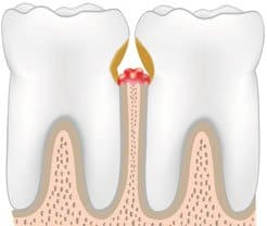 teeth with periodontal pockets