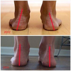 Imagen del cambio de ángulo del tobillo