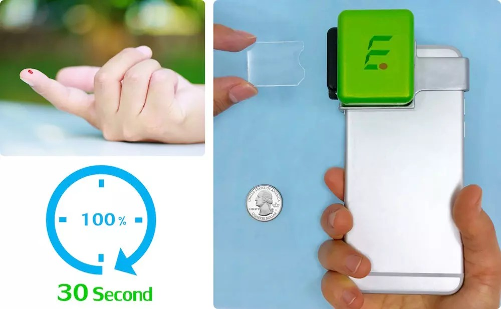 Imagen de iMOST, el accesorio para iPhone que realiza análisis de sangre