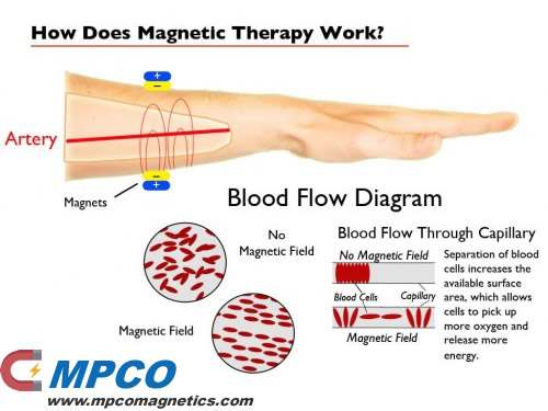 How Magnet Therapy work