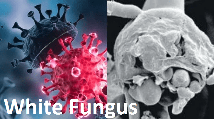 White Fungus Infection