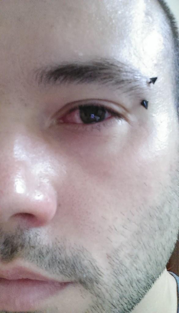 Eye infection in Vietnam