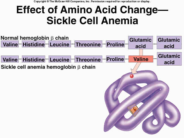 What Are Alleles Sickle Cell Disease