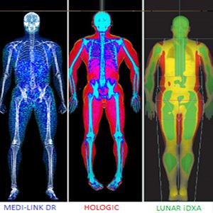 DEXA SCAN MRI PET CT SCAN IN SOUTH DELHI 9999446542