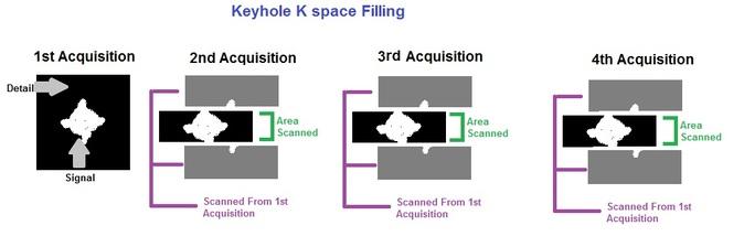 Kspace Filling  MRI SHARK